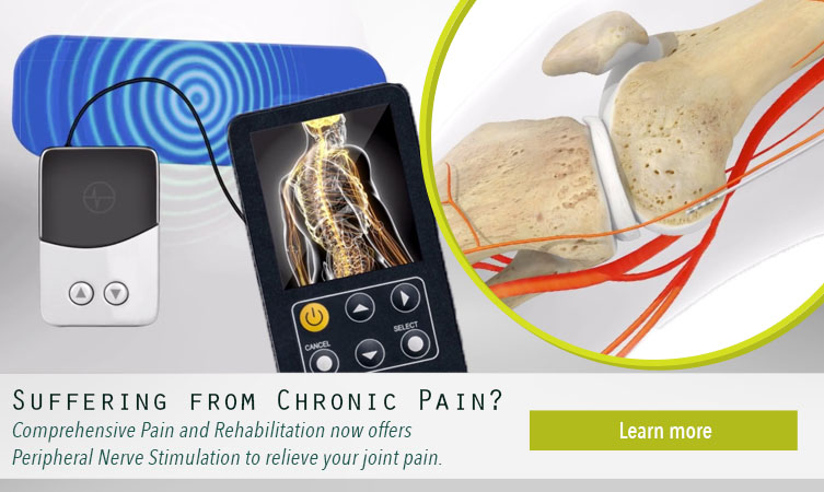 CPR Now Offers Peripheral Nerve Stimulation